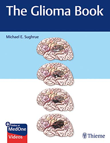 The Glioma Book