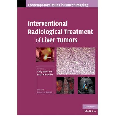 [(Interventional Radiological Treatment of Liver Tumors)] [Author: Andy Adam] published on (February, 2009)