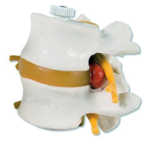 3B Scientific - Anatomie humaine - 2 Vertèbres Lombaires avec Prolapsus du Disque Intervertébral Montage (Vertebre Colonna Vertebrale)