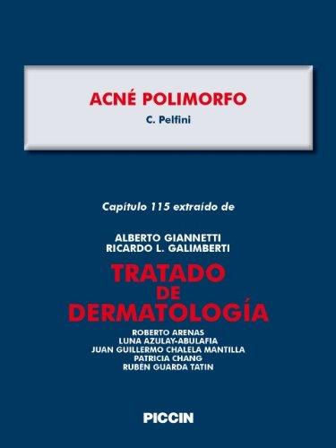 Capítulo 115 extraído de Tratado de Dermatología - ACNÉ POLIMORFO