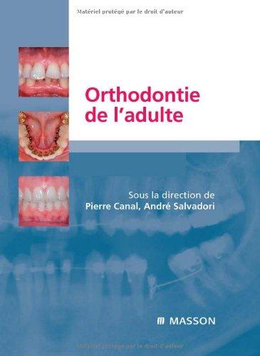 Orthodontie de l'adulte : Rôle de l'orthodontie dans la réhabilitation générale de l'adulte (Ancien Prix éditeur : 205 euros)