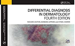 Differential Diagnosis in Dermatology by [Ashton, Richard, Leppard, Barbara, Cooper, Hywel]
