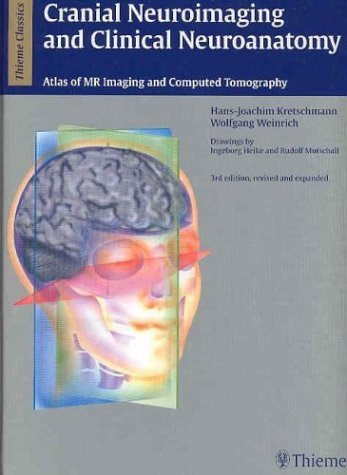 Cranial Neuroimaging and Clinical Neuroanatomy: Magnetic Resonance Imaging andComputed Tomography (Thieme Classics) by Hans-Joachim Kretschmann (2003-08-02)