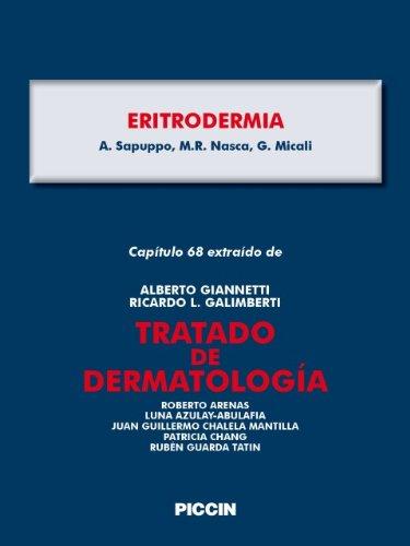 Capítulo 68 extraído de Tratado de Dermatología - ERITRODERMIA