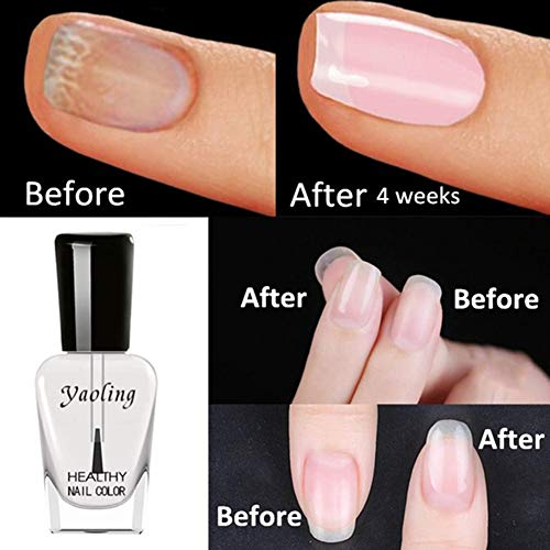 WFZ17 Peel Off Nail Base Oil Women Beauty Nourishing Nagelhaut Weicher Nutritional Fingernagel Armor