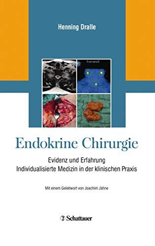 Endokrine Chirurgie: Evidenz und Erfahrung - Individualisierte Medizin in der klinischen Praxis