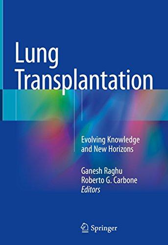 Lung Transplantation: Evolving Knowledge And New Horizons por Ganesh Raghu epub