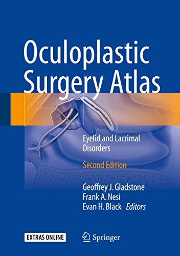 Oculoplastic Surgery Atlas: Eyelid and Lacrimal Disorders (English Edition)