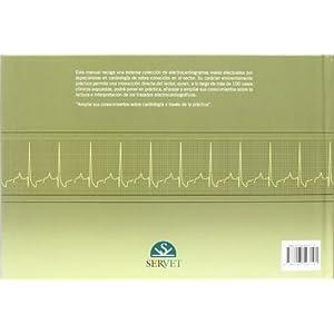 Manual práctico de interpretación electrocardiográfica