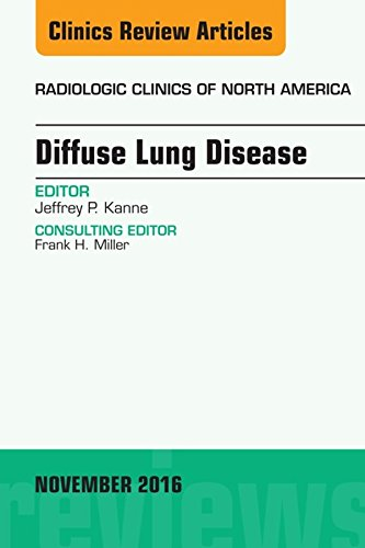 Diffuse Lung Disease, An Issue Of Radiologic Clinics Of North America, E-book (the Clinics: Radiology) por Jeffrey P Kanne