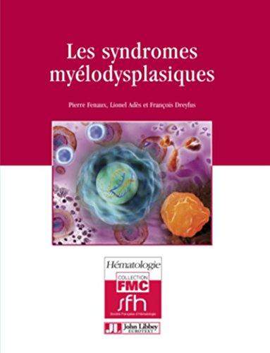 Les syndromes myélodysplasiques (FMC - Hématologie) par Pierre Fenaux