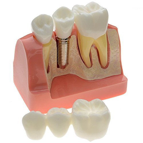 finlon Zähne Modell Dental Demonstration Zähne Modelle Implantat Analyse Krone Brücke