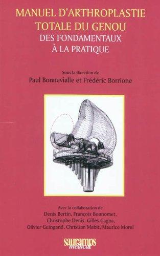 Manuel d'arthroplastie totale du genou : Des fondamentaux à la pratique
