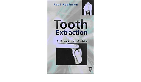 buy tooth extraction a practical guide book online at low prices in rh amazon in Tooth Extraction Healing Stages tooth extraction a practical guide free download