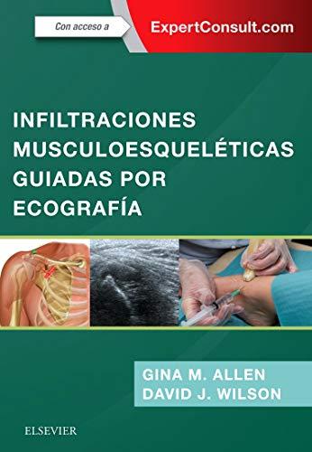 Infiltraciones musculoesqueléticas guiadas por ecografía