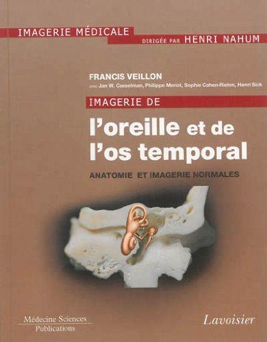 Imagerie de l'oreille et de l'os temporal : Tome 1, Anatomie et imagerie normales
