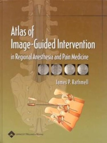 Atlas of Image-Guided Intervention in Regional Anesthesia and Pain Medicine 1st Edition by Rathmell MD, James P. (2005) Hardcover