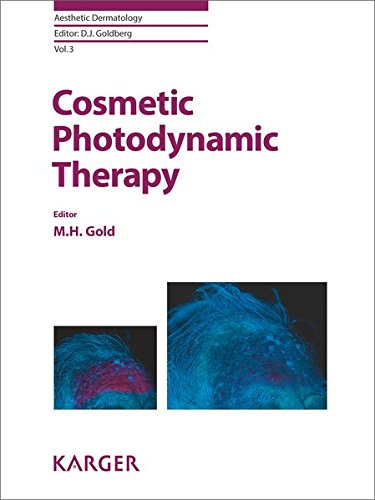 Cosmetic Photodynamic Therapy