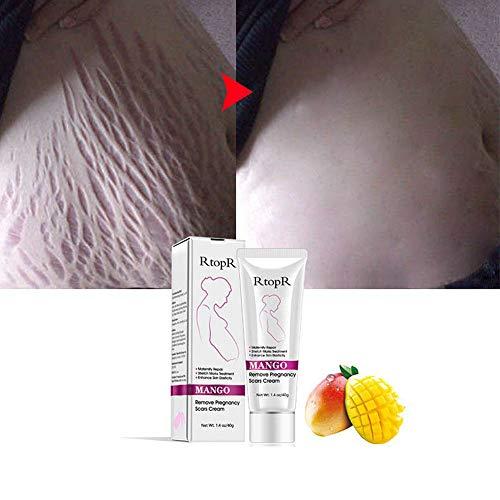 Mimiga Narbencreme Narbensalbe Narbe Gel Narbenentfernung Scar Cream Mango Dehnungsstreifen Behandlung Scar Fade Cream