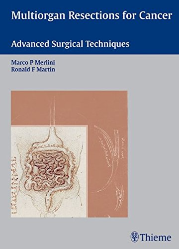 Multiorgan Resections for Cancer: Advanced Surgical Techniques