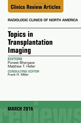 Topics in Transplantation Imaging, An Issue of Radiologic Clinics of North America, 1e (The Clinics: Radiology) by Puneet Bhargava MD (2016-03-03)