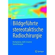 Bildgeführte stereotaktische Radiochirurgie: Hochpräzise, nicht-invasive Tumortherapie