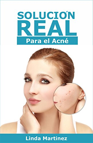 Solución Real para el Acné: Eliminar el acné es posible