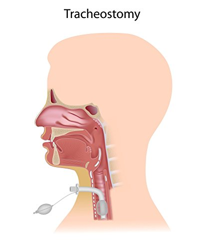 Can early tracheostomy decrease mortality rate, length of ICU stay and duration of mechanical ventilation when compared with late Tracheostomy ?