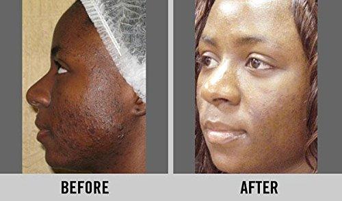 pulire-bianco-e-potente-skin-lightening-sbiancante-sbiancamento-crema-corpo-lozione-50-ml-concentrat
