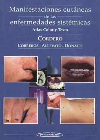 Manifestaciones Cutaneas de Las Enfermades Si por Alejandro A. Cordero