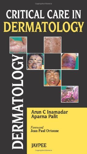 Critical Care in Dermatology Critical Edition by Inamadar, Arun C., Palit, Apama (2013) Paperback