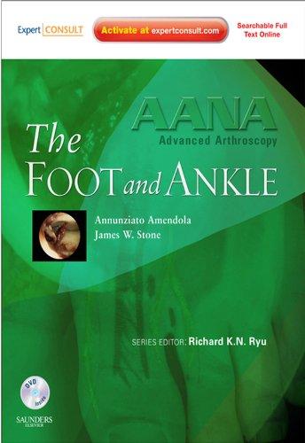 Torrent Descargar Español AANA Advanced Arthroscopy: The Foot and Ankle Como PDF