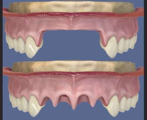 Immediate vs. Late Implantation Replacing Multiple Adjacent Missing Teeth in the Anterior Maxilla