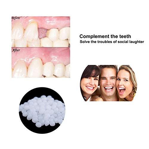 Zahnersatz Zahnersatz Gel Bleichmittel Für Zähne Zahnaufhellung Temporäre Zähne Füllen Zähne Für Männer Und Frauen Kosmetische Prothesen,150grams