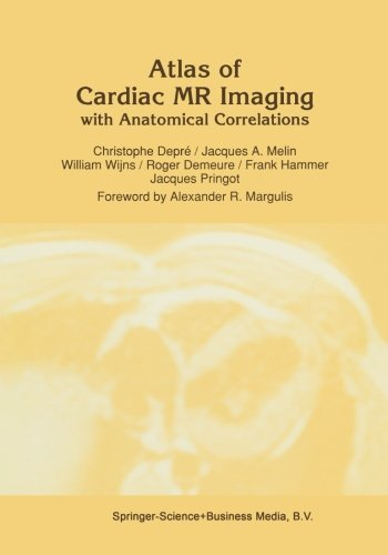 Atlas of Cardiac MR Imaging with Anatomical Correlations (Series in Radiology) by C. Depr???? (1991-08-31)