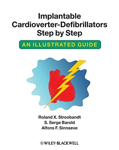 Implantable Cardioverter-Defibrillators Step by Step: An Illustrated Guide