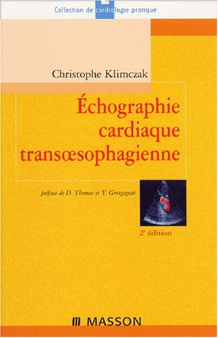 Echographie cardiaque transoesophagienne