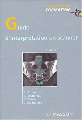 Guide d'interprétation en scanner