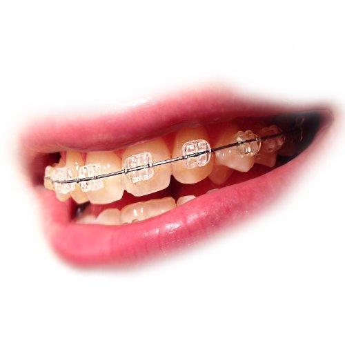 Elastische KFO Ortho Zahnspangengummis Zahnspangen Gummis Ligaturen transparent (260 Stück pro Packung) (transparent)