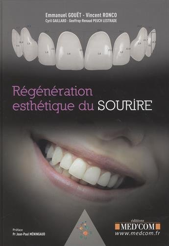 Regnration esthtique du sourire