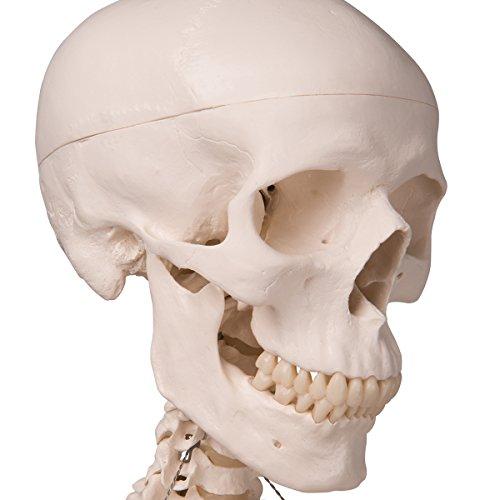 3B Scientific  D26 Modelo de anatomía humana Afección dental, A 2 Aumentos, de 21 Piezas - 3B Smart Anatomy