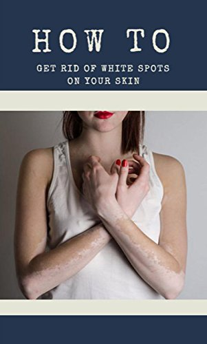 how-to-get-rid-of-white-spots-on-your-skin-english-edition