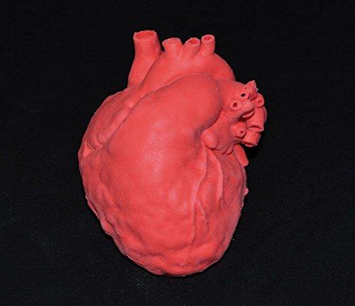 Pädiatrisches Herz mit Atriumseptumdefekt (ASD) - Pädiatrische Herz