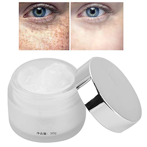 Sommersprossen-Creme, Gesichtshaut Whitening Cream Flecken Anti-Aging 30g