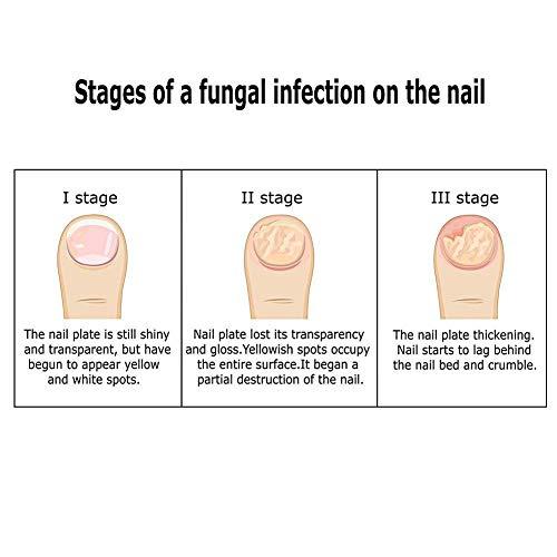 Fungus Stop, Crema Hongo Uñas Tratamiento, Anti Hongos De Uñas, Crema Tratamiento anti- hongos en las uñas, Tratamiento anti hongos de uñas, Apto para dedos y pedicura