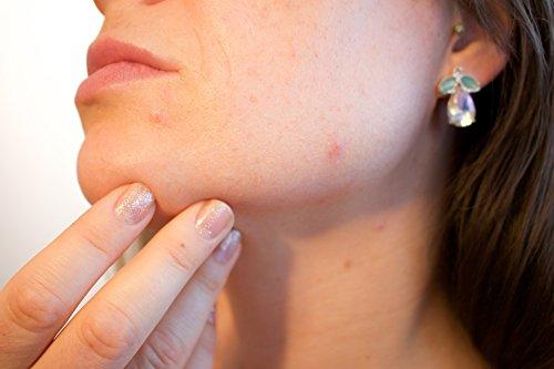 Acaba con el Acne para siempre: Dile adios al acne de [Rodriguez, Maria