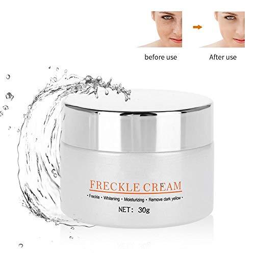 Sommersprossen-Entferner-Creme, Gesichtshaut Aufhellende Serumentfernung für dunkle Flecken Repair Blemish Hyperpigmentation Gesichtscreme verbessern