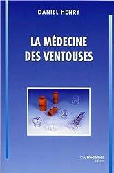 La médecine des ventouses