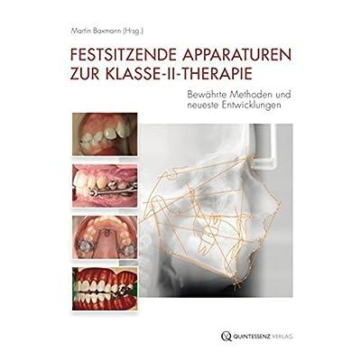 Festsitzende Apparaturen Zur Klasse Ii Therapie Bewhrte Methoden Und Neueste Entwicklungen By Martin Baxmann 2012 07 05