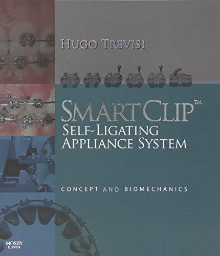 SmartClip Self-Ligating Appliance System: Concept and Biomechanics, 1e by Hugo Trevisi DDS (2007-09-19)